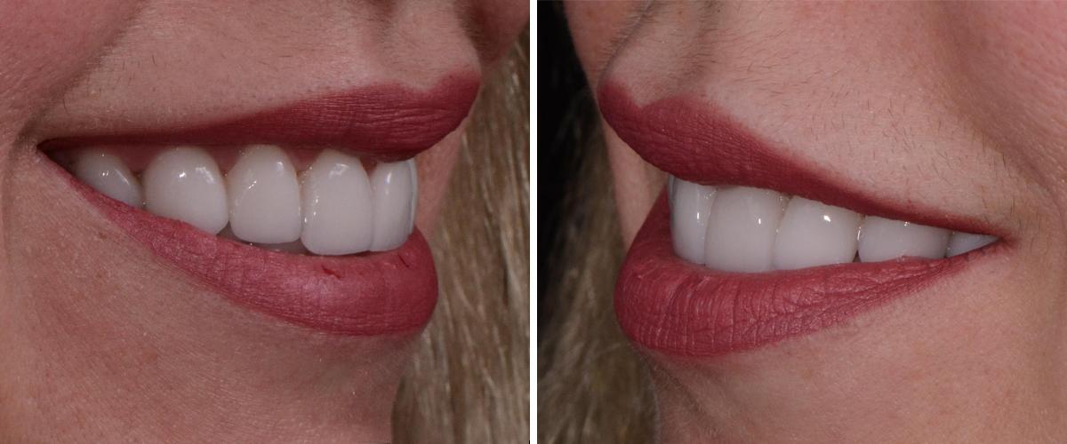 Kyiv Dental Ceramic Crowns BioHPP, in Ukraine