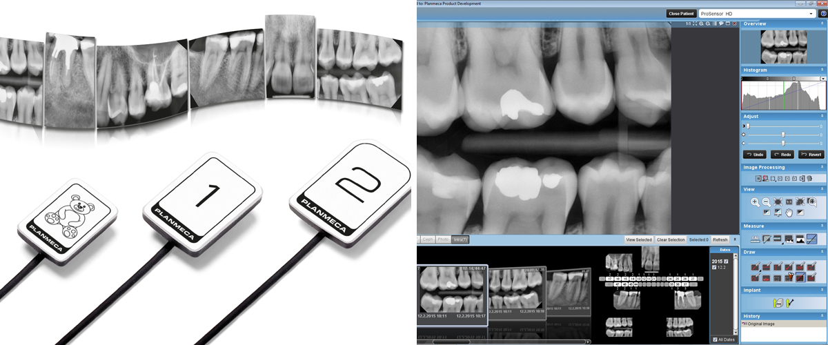 RVG Single Tooth Image in Kyiv, Radiovisiography in Ukraine