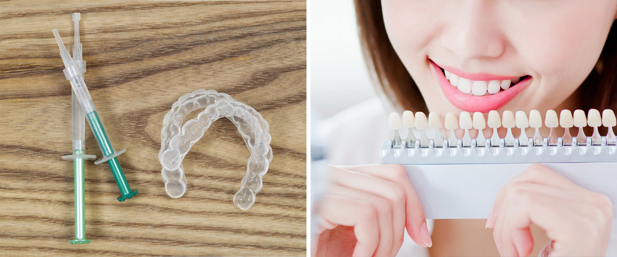 Home teeth whitening in Kyiv, Ukraine